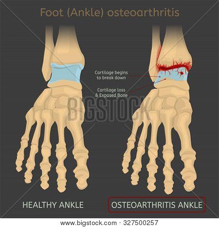 Foot Arthritis Image. Ankle Osteoarthritis. Joint Pain In Human Feet. Editable Vector Illustration I