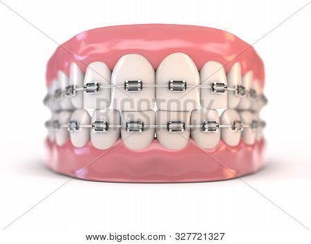 A Pair Of Upper And Lower Sets Of Perfect Human Teeth Fitted With Steel Dental Braces On An Isolated
