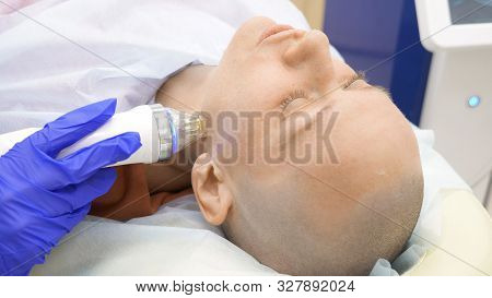 Close-up. Microneedle Rf Lifting Procedure. Hardware Cosmetology. Beautician Conducts A Facial Rejuv