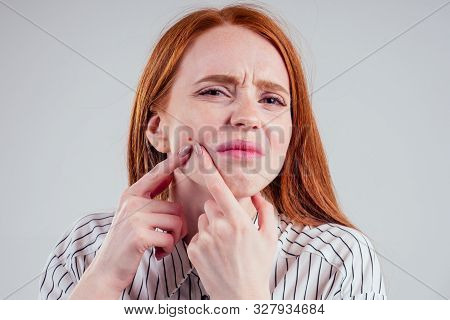 Redhead Student Woman Squeezing Her Pimples, Removing Pimple From Her Face White Background Studio
