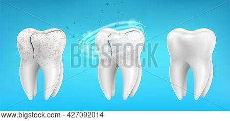 3d Realistic Clean And Dirty Tooth Set On Blue Background, Teeth Cleaning And Whitening Procedure. D