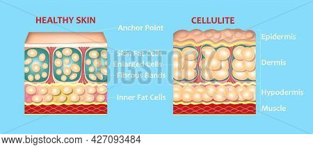 Forming Of Underskin Cellulite Illustration. Structure Of Normal Healthy And Cellulite Skin. Compari