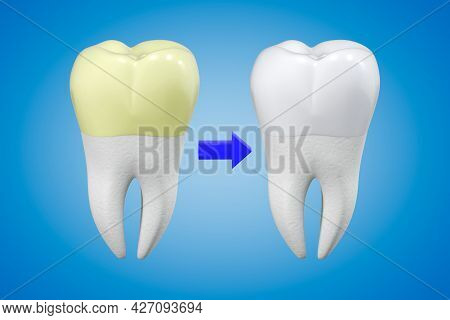 Tooth Whitening Concept. A Tooth With Yellow Plaque And A White Tooth With Shiny Enamel In Compariso