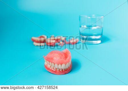Dentures. Dentistry. Prosthetic Teeth. Dental Plates. Artificial Teeth. Removable Partial Dentures O