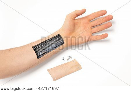 Robot Hand Inside Human Hand - Prosthesis Concept, Isolated On White