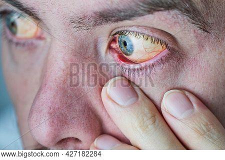 Human Eye With Yellow Eyeball, Closeup. Yellow Eyes Is A Symptom Of Liver Disease Or Hepatitis