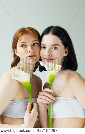 Smiling Woman With Vitiligo Holding Flower Near Freckled Friend Isolated On Grey