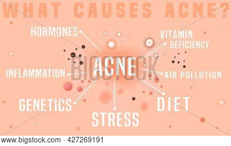 What Causes Acne Poster. Skin Disease, Dermatology, Cosmetology Concept.