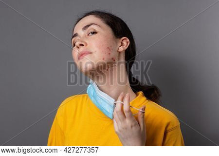 Maskne. A Young Caucasian Woman Takes Off Her Protective Mask And Shows Pimples On Her Chin. Gray Ba