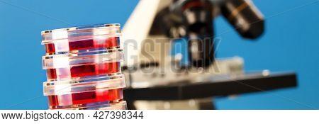 Petri dishes and laboratory microscope