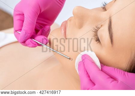 A Procedure For Cleansing The Skin Of The Face From Blackheads And Acne. Cosmetologist Treats Proble