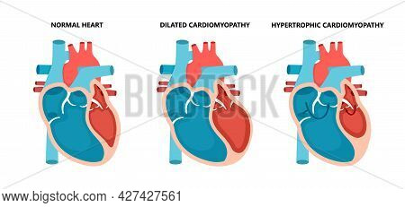 Types Of Heart Diseases - Normal, Hypertrophic And Dilated Cardiomyopathy. Human Heart Muscle Diseas