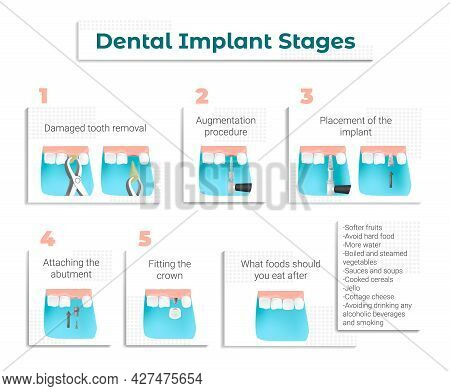 A Memo For Patients About Dental Implantation