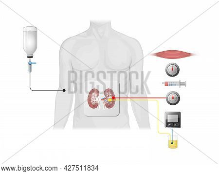 Insulin Action And Diabetes Type 1 And 2, 2d 3d Graphic, Render, Illustration