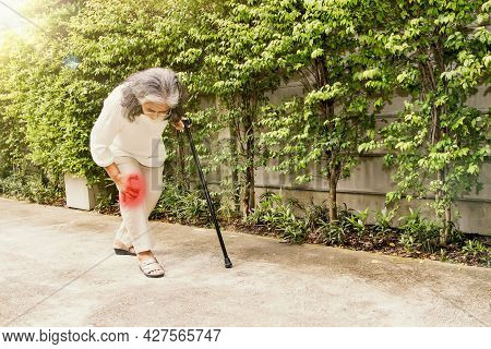 Elderly Asian Woman Aching Knee With Osteoarthritis During Walking : Knee Injury Inflammation Is Mor