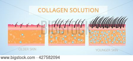 Collagen And Elastin ,protection Skin And Plump Vector Design