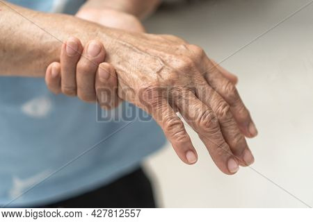 Guillain-barre Syndrome Gbs, Peripheral Neuropathy Pain In Elderly Patient On Hand, Fingers, Sensory