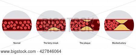 Arteriosclerosis, Infarct, Ischemia, Thrombosis Disease. Cholesterol In Human Blood Vessels. High Ld
