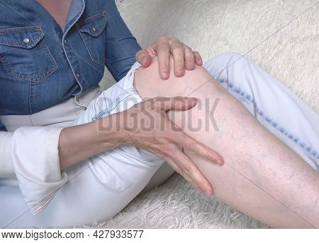 Cropped Shot Of Woman Sitting On Sofa And Suffering From Leg Pain. Ankle Disease, Arthritis Or Arthr