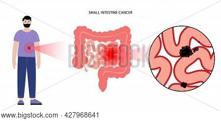 Cancer In Small Intestine. Gastrointestinal Stromal Tumor Concept. Development Of Disease In The Dig