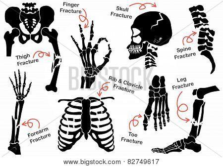 Set Bone Fracture Icon