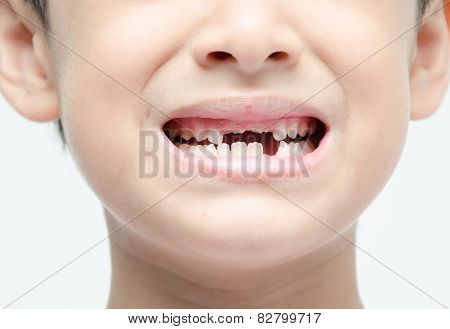 Little Boy Smiling Show Toothless Dental Care