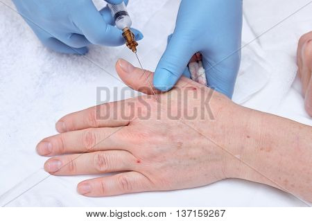 Anti-age injection therapy. Hand rejuvenation in clinic