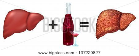 Healthy liver and alcohol get cirrhosis. Isolated on white illustration