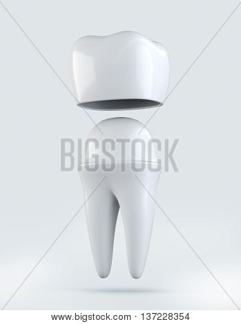 3D Illustration Of Crown Tooth On White Background.