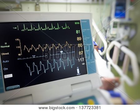 Close up EKG monitor in icu room