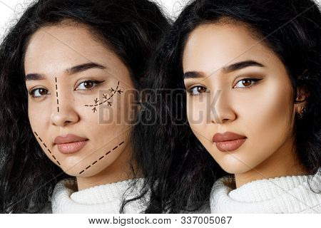 Beautiful Woman With Lifting Arrow On Face Before And After Plastic Surgery.
