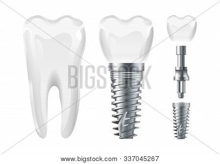 Dental Surgery. Implant Cut And Healthy Tooth. Realistic Vector Dental Implant And Crown. Stomatolog