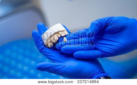 Dental, A Dental Prosthesis Polishes .artificial Teeth, Prosthetics.prosthetics Hands While Working