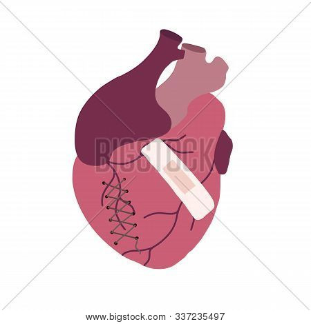 Flat Illustration Of Ill Realistic Heart With Seam And Patch. Medical Picture. Broken Heart. The Obj