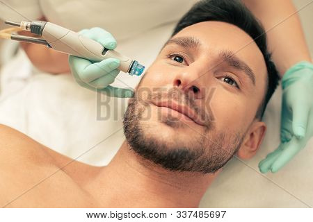 Man And Dermabrasion Device Near His Face Nourishing The Skin