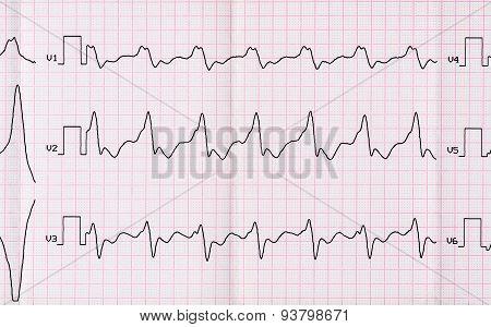 Ecg With Paroxysm Correct Form Of Atrial Flutter With Atrioventricular Conduction 2:1
