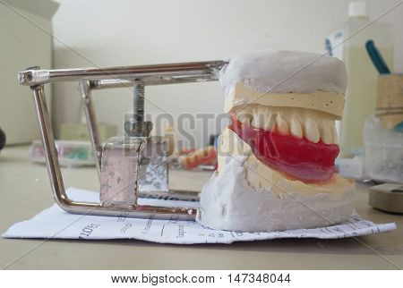 outpatient dental denture mold in plaster imprint