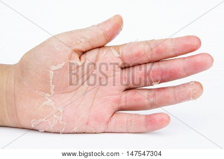 Dry hands peel Contact dermatitis fungal infections Skin infections from exposure