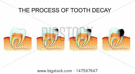 illustration of tooth decay tooth decay. stomatology