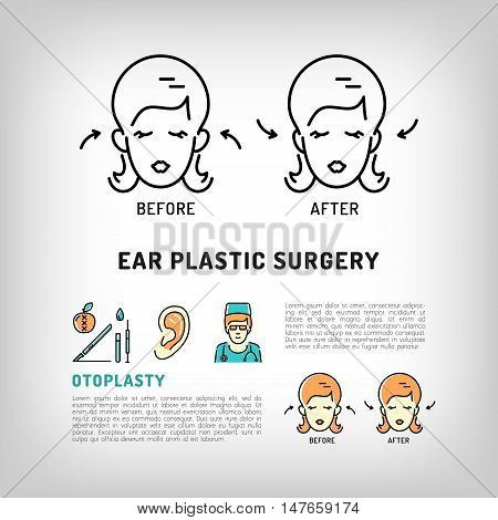 Otoplasty Ear Plastic Surgery logos. Face Plastic surgery concept thin line icons. Medical symbols and cosmetic surgery before and after. Vector illustration