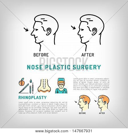 Rhinoplasty Nose Plastic Surgery logos. Face Plastic surgery concept thin line icons. Medical symbols before and after Vector illustration