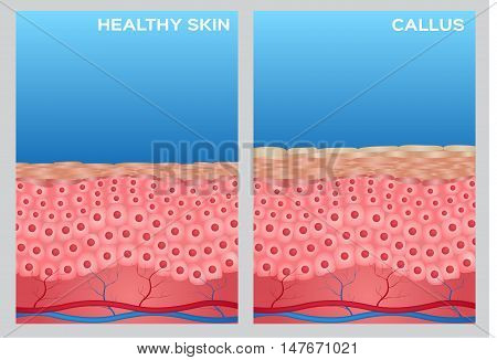 callus skin anatomy and healthy skin on blue background