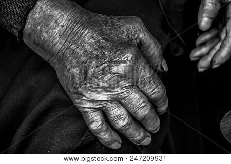 Two Hands Of An Old Woman On A Knees.wrinkles Of An Elderly Grandmother.hands Of An Old Woman With W