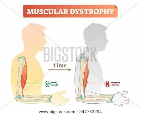 Muscular Dystrophy Vector Illustration. Compared Normal And Healthy Muscle Versus Atrophied And Weak