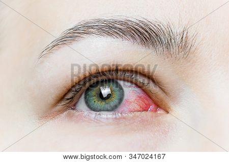 Close Up Of A Severe Bloodshot Red Eye. Viral Blepharitis, Conjunctivitis, Adenoviruses. Irritated O