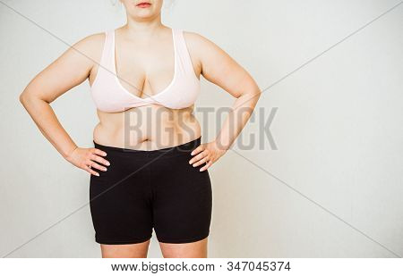 Woman With Fat Abdomen, Overweight Female Stomach, Stretch Marks On Belly Closeup, White Background