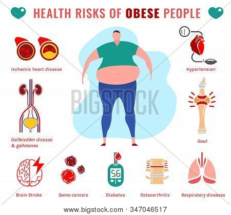 Fat People Disease. Health Risks Of Obese Men. Medical Infographic With Flat Icons. Unhealthy Behavi