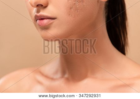 Cropped View Of Young Naked Woman With Blemished Skin Isolated On Beige