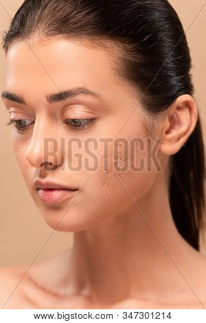 Young Naked Woman With Blemished Skin Isolated On Beige