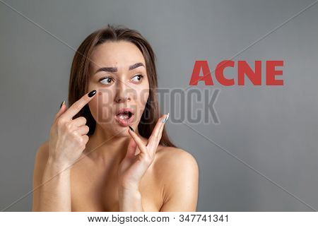 Cosmetology, Dermatology And Acne. A Young Caucasian Dark-haired Woman Was Surprised To Find Pimples